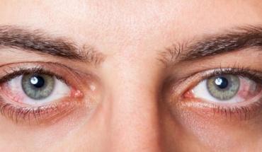 Όμορφα μάτια με απλές κινήσεις...