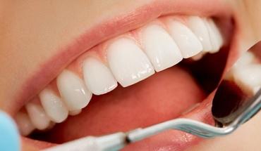 """""""Ναι"""" στο φθόριο στα δόντια αλλά με μέτρο..."""