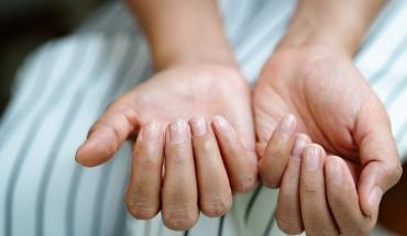 COVID-19: Αφήνει σημάδια ακόμα και στα νύχια μας