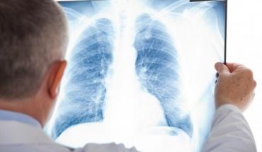 Κ. Ιωάννου: Ο καρκίνος αντιμετωπίζεται ως ζήτημα Δημόσιας Υγείας