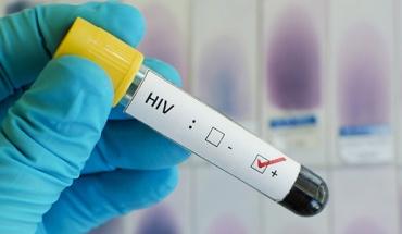 Πειραματικό «κοκτέιλ» αντι-ιικών φαρμάκων απάλλαξε πλήρως Βραζιλιάνο από τον ιό HIV
