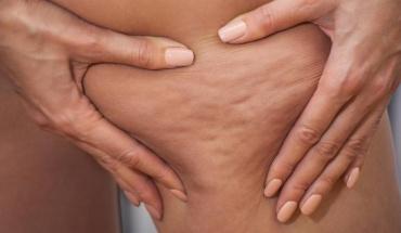 Αντιμετώπιση της κυτταρίτιδας με την βοήθεια δερματολόγου ή πλαστικού χειρουργού