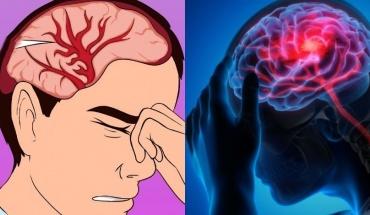 Αυτά είναι τα χαρακτηριστικά των ασθενών με Αγγειακό Εγκεφαλικό Επεισόδιο και COVID-19