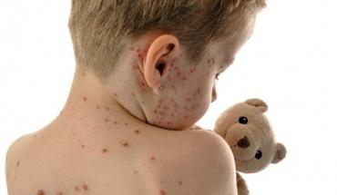 Παγκόσμια Οργάνωση Υγείας: Η ιλαρά σκότωσε το 2018 χιλιάδες παιδιά