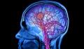 Διεθνές βραβείο σε Έλληνα ερευνητή για την εργασία του σε υδροκέφαλους ασθενείς
