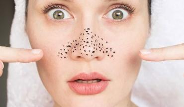 Ομορφιά του δέρματος: Έξι τρόποι να απαλλαγούμε από τα μαύρα στίγματα