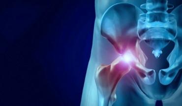 Αρθρίτιδα ισχίου: Αυτή είναι η πλέον αποτελεσματική μέθοδος θεραπείας