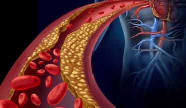 Το παράδοξο της αύξησης της χοληστερίνης σε λαούς της Ανατολής