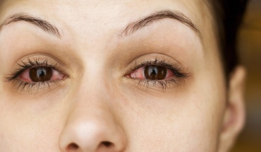 Πρησμένα και θαμπά μάτια από κούραση