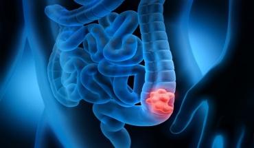 Η σημασία της πρόληψης στον καρκίνο του παχέος εντέρου