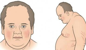 Σπάνιο σύνδρομο μπορεί να γίνει το αίτιο που προκαλεί την παχυσαρκία