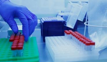 ΕΚΠΑ: Μονοκλωνικά αντισώματα στην αντιμετώπιση της COVID-19