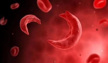Δρεπανοκυττάρωση: Μια σοβαρή μορφή αναιμίας