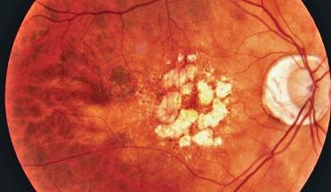 Ηλιακή εκφύλιση ωχράς κηλίδας: Νέα πρώιμη διάγνωση