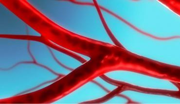 Θρόμβωση φλεβωδών κόλπων εγκεφάλου μετά από εμβολιασμό έναντι SARS-CoV-2