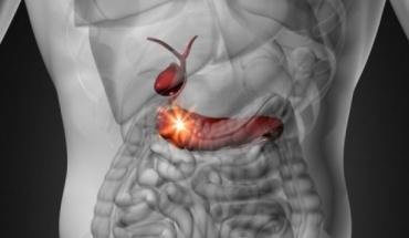 Τεχνητό πάγκρεας αλλάζει το τοπίο για τα άτομα με διαβήτη τύπου 1