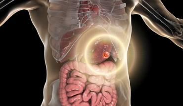 Καρκίνος στομάχου: Καμία ασθένεια δεν είναι σήμερα ανίκητη υπό προϋποθέσεις