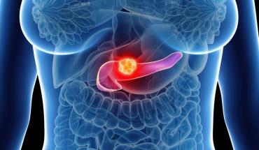 Μείωση σωματικού βάρους και παγκρεατικός καρκίνος