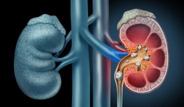 Νεφρολιθίαση: Με ποια ενδοκρινική διαταραχή έχει σχέση