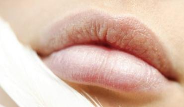 Σκασμένα χείλια και πώς να τα αντιμετωπίσουμε