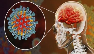 """""""Βόμβα"""" λοιμωξιολόγου: Περισσότερες οι βλάβες στον εγκέφαλο παρά στους πνεύμονες από τον Sars"""